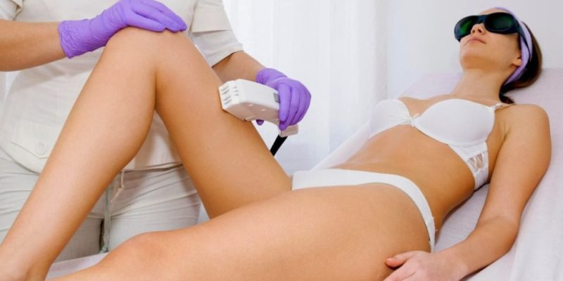 laserowa depilacja
